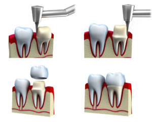 adult dentistry Dental-crown-installation-process-000020196899_Medium