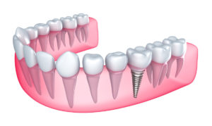 adult dentistry Dental-implant-in-the-gum-000019922655_Medium